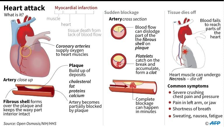 Factfile on heart attacks. | © AFP | John SAEKI