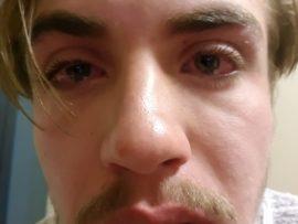 Nicolas se gesig was erg geswel na die aanval. Foto: Verskaf