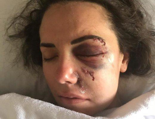 Nanna Viviers die oggend nadat haar oog geopereer is. Foto: Verskaf