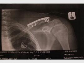 'n X-straalfoto van Adriaan van der Westhuizen se sleutelbeen nadat dokters dit met 'n pen en skroewe geheg het.