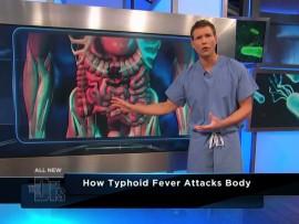 Typhoid outbreak in Zimbabwe