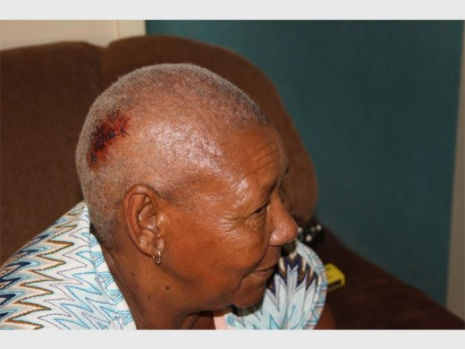 LUCKY TO BE ALIVE: Pamela Dreyer (68) recuperating at home, with a big and deep gash to her head after being knocked over by a car.