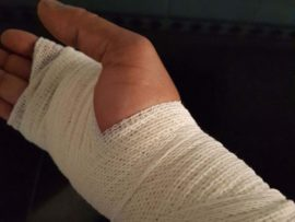 The officer suffered soft tissue damage to his right hand in the assault.