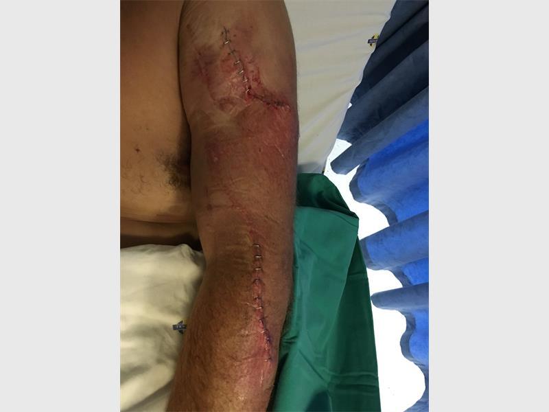 Wayne Champion's left arm. (Pic: Facebook)