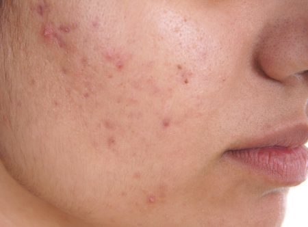 what is the fastest way to get rid of pimples