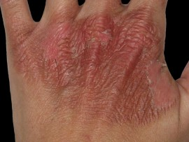 First degree burns caused by boiling water. (Photo sourced.)