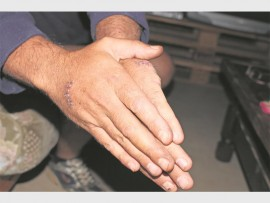 War wounds: Johan Greyling* was stabbed eight times while fighting off his attackers near Farmers Hall last week.