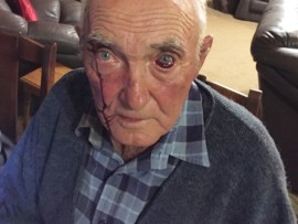 Mr Brown sustained severe injuries to his head and eye durin an attack on his farm.