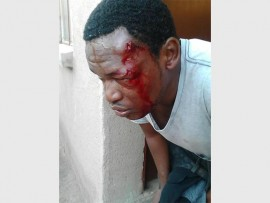 One of the students at CS Barlow campus, Tebogo Makofane, who was injured when police fired rubber bullets to disperse them from blocking the entrance of the facility on Wednesday morning.