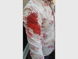Charlie Smidt se beloede arm nadat hy met die mes gesteek is. Foto: verskaf deur Charlie Smidt