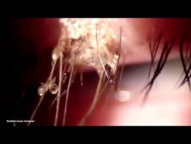 FREAKY FRIDAY: Doctors remove more than 20 lice from woman's eye
