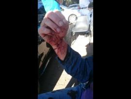 Taschia Slabbert bleeding after attack in Groenkloof nature reserve.  Photo: supplied.