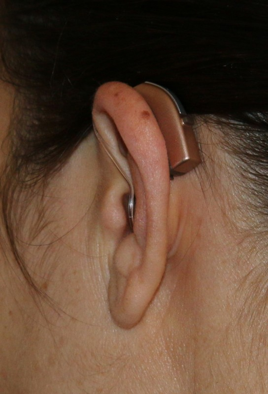 Discreet hearing aids.
