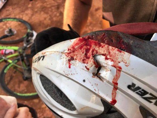 Faerie Glen cyclist accident, Johan van Tonder, Faerie Glen cyclist survives horrific accident