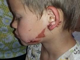 Kosie Wessels Photo: Child Medi Organisation