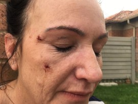 Lesley-Anne Swanepoel suffered a fractured cheekbone in the attack.