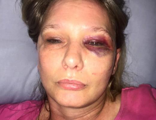 Velia Steenenkamp is Vrydagaand in haar kar in die Moot deur twee mans oorweldig en aangeval. Foto: Verskaf.
