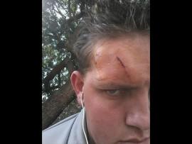 Tiaan Viljoen is verlede week met 'n hamer by die skool geslaan. Foto: Verskaf