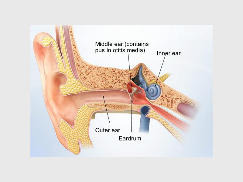 OPINION: Home remedies for ear infections | Randburg Sun